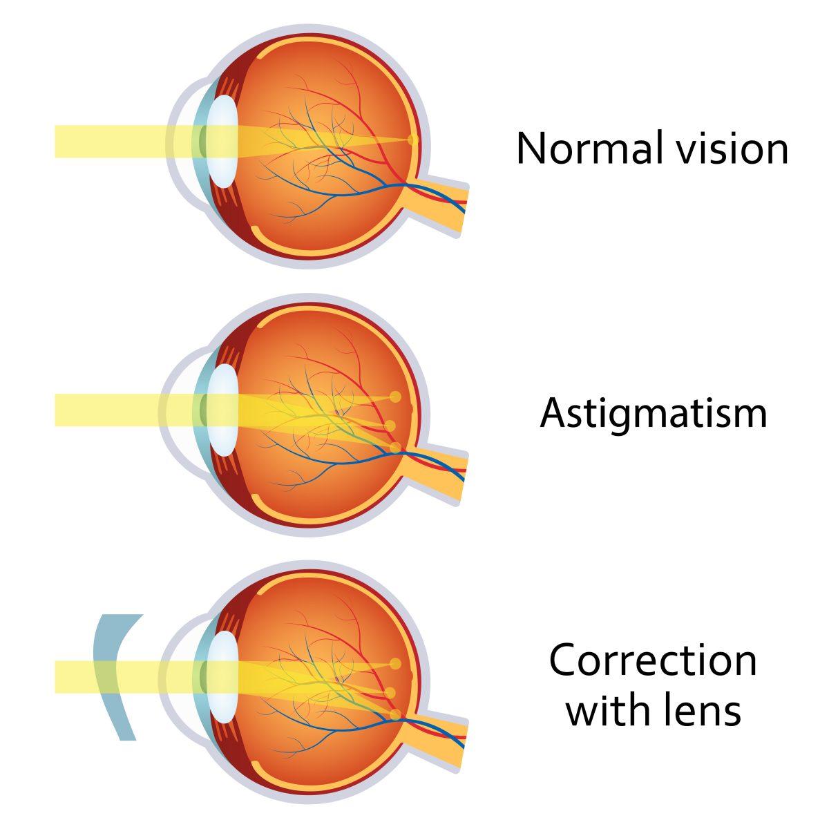 olika syn på ögonen